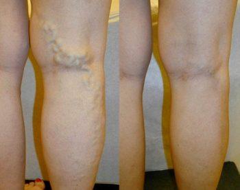 Vary Forte: la crema 100% naturale per dire addio alle vene varicose